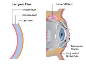 E-Eye info